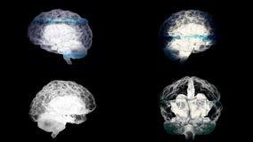 Quatre cerveaux tournant avec le balayage de mri sur le fond noir, concept de santé animation Esprit humain, droit et gauche illustration stock