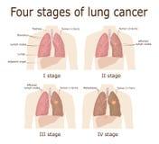 Quatro fases do câncer pulmonar ilustração do vetor
