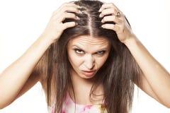 Queda de cabelo fotos de stock royalty free