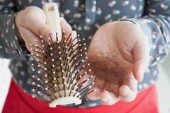 Queda de cabelo Fotos de Stock