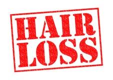 Queda de cabelo Imagens de Stock
