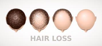 Queda de cabelo Grupo de quatro fases da calvície Foto de Stock Royalty Free