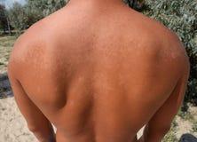 Queimadura na pele da parte traseira A esfoliação, pele descasca fora Bronzeado perigoso foto de stock