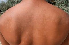 Queimadura na pele da parte traseira A esfoliação, pele descasca fora Bronzeado perigoso fotografia de stock