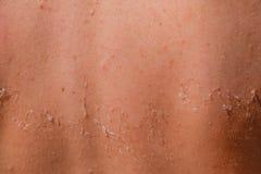 Queimadura na pele da parte traseira A esfoliação, pele descasca fora Bronzeado perigoso foto de stock royalty free