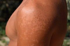 Queimadura na pele dos ombros A esfoliação, pele descasca fora Bronzeado perigoso foto de stock royalty free