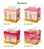 Queimaduras da pele ilustração royalty free