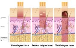 Queimaduras da pele Imagem de Stock