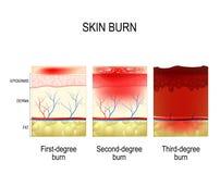 Quemadura de la piel Tres grados de quemaduras stock de ilustración