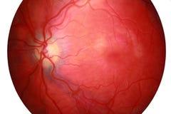Querschnitt des menschlichen Auges Lizenzfreies Stockbild