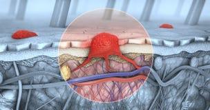 Querschnitt einer kranken Haut mit Melanomen, das den Blutstrom und die Lymphfläche einträgt stock abbildung