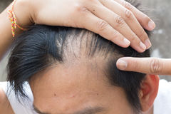 Question d'homme supérieur et de perte des cheveux image stock
