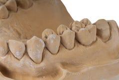 Quijada dental foto de archivo libre de regalías