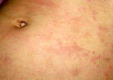 Różowy liszaj na skórze podbrzusze Łuszczyca, dermatitis, egzema, urticaria, alergie obrazy royalty free