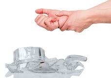 Räcka sårat vid granatsplitterexponeringsglas som isoleras på vit Royaltyfria Bilder