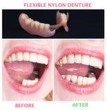 Réadaptation dentaire avec la prothèse supérieure et inférieure, avant et après le traitement Images libres de droits