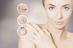 Rénovation du portrait de peau de la femme avec les cercles graphiques pour la poussée Photographie stock
