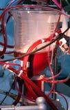 Réservoir de sang pour la déviation cardio-pulmonaire images libres de droits