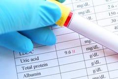 Résultat d'essai élevé anormal d'acide urique Photos libres de droits