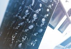 Résultat de balayage de CT dans le bureau de médecins images stock