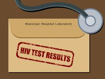 Résultats d'essai d'HIV Photographie stock