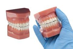 Résultats de traitement orthodontiques pour le sourire parfait photos libres de droits