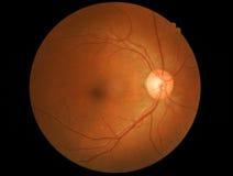 Rétine détaillante médicale de photo et nerf optique images stock