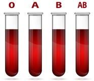 Różny krwionośny pisać na maszynie wewnątrz próbnej tubki ilustrację Fotografia Royalty Free
