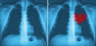 Röd hjärta för röntgenstråle av människan Arkivbild