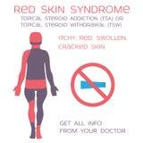 Röd hudsyndrom, aktuell steroidtillbakadragande eller böjelse Eksem och steroider Royaltyfri Bild