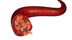 Röda blodceller och blodflöde till och med en åder, små sfäriska celler, som innehåller hemoglobin, ett protein som ger en röd fä stock illustrationer