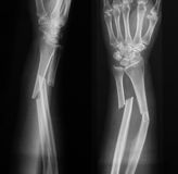 Röntga bilden av den brutna underarmen, AP och sidosikten Arkivbilder