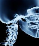 Röntga bilden av en man som isoleras på svart Arkivfoton