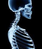 Röntga bilden av en man som isoleras på svart Arkivbild