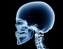 Röntga bilden av en man som isoleras på svart Royaltyfria Bilder
