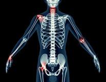 Röntga bilden av en man som isoleras på svart Arkivfoto