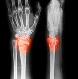 Röntga bilden av handledskarven, AP och sidosikten royaltyfria foton