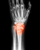 Röntga bilden av handledskarven, PA-sikt Arkivfoto
