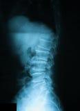 Röntga bilden av T--Lryggen, sidosikt Uppvisning av ett kompressionsbrott på T12 Arkivfoto