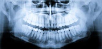 Röntga bildläsningen av tänder royaltyfri fotografi
