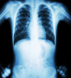 Röntga bröstkorgen (den akimbo positionen) (den främre sikten) Arkivbild