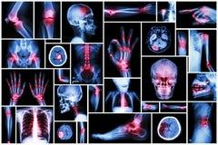 Röntga den åtskilliga delen av människan med den åtskilliga sjukdomen (slaglängd, artrit, gikt, reumatoid, hjärntumör, osteoarthr royaltyfria bilder