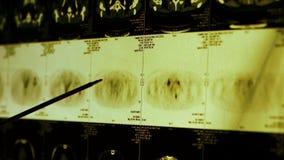 Röntgar den subclavian husdjur-ct bildläsningen för doktorsstudien, lymfaknutpunkter, cancermetastasisen lager videofilmer