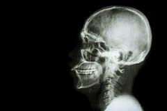 Röntgen Sie asiatischen Schädel und löschen Sie Bereich an der linken Seite Lizenzfreies Stockfoto