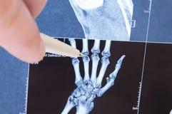 Röntgen Sie Scan der Hand, der Knochen und der Fingergelenke Behandeln Sie spitzes auf kleinen Gelenken des Fingers, in denen Pat Lizenzfreie Stockbilder