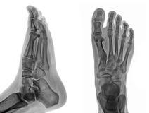 Röntgenaufnahme lizenzfreie stockfotos
