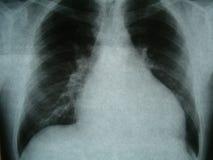 Röntgenbild bröstkorg, hjärtafel Royaltyfri Bild