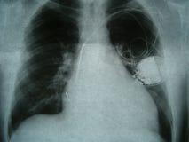 Röntgenbild bröstkorg, hjärtapacemaker royaltyfri fotografi