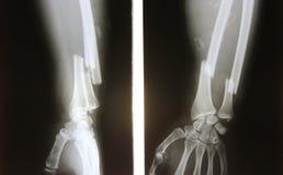 Röntgenbild des gebrochenen Unterarms, AP und Seitenansicht zeigen Bruch Stockfotografie