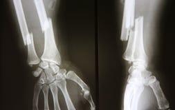 Röntgenbild des gebrochenen Unterarms, AP und Seitenansicht zeigen Bruch Lizenzfreies Stockbild